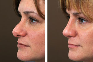 rhinoplasty-pictures