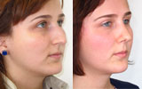 female-rhinoplasty-nose-job-before-after