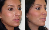 nose-job-rhinoplasty-before-after-female