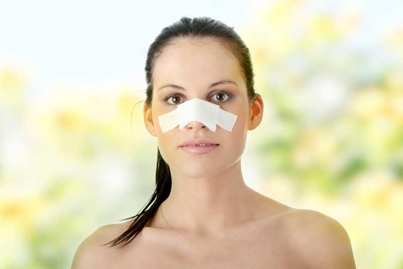 treating-a-broken-nose