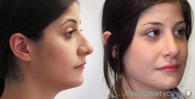 nose-job-rhinoplasty-before-after