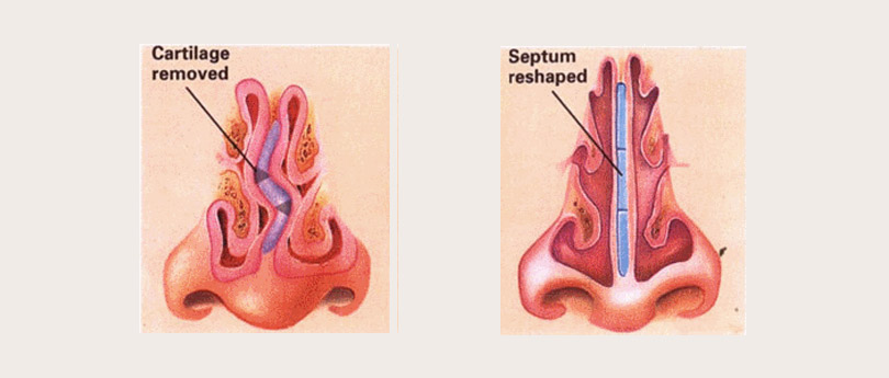 septoplasty-turbinate-reduction-procedures