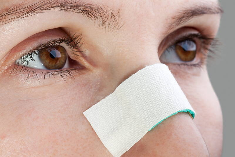 what-to-expect-from-your-rhinoplasty-recovery