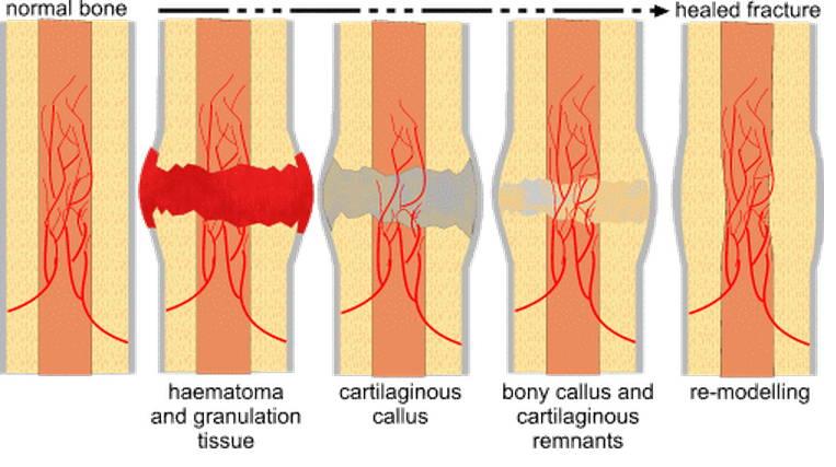 nasal-fractures-callus